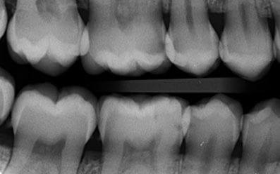 Radiografie Bite-Wing