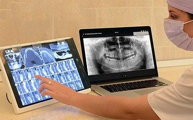 Ortopantomografie