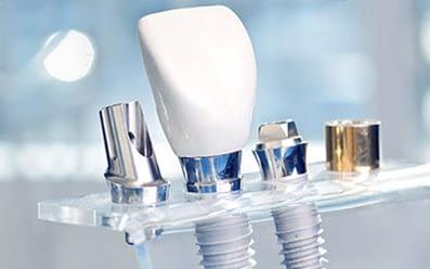 Implantologie Dentară