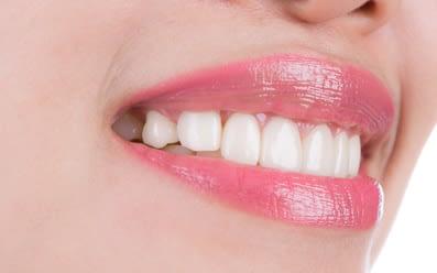 Protetică și Estetică Dentară